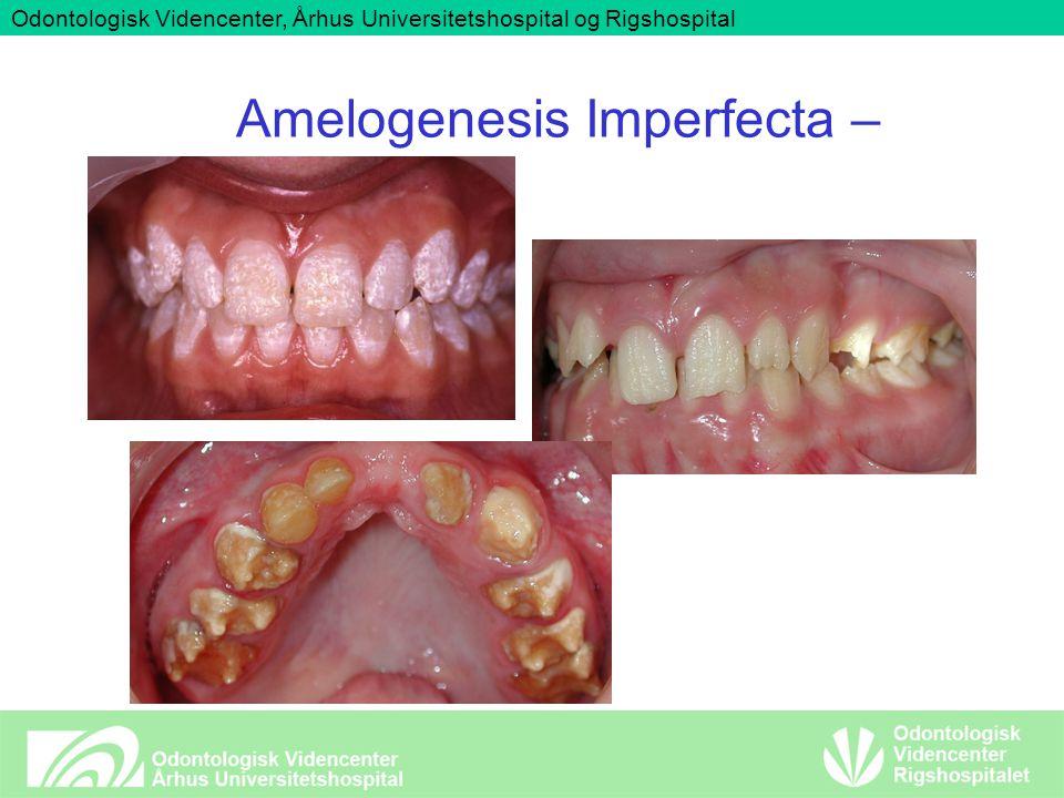 Odontologisk Videncenter, Århus Universitetshospital og Rigshospital Amelogenesis Imperfecta –