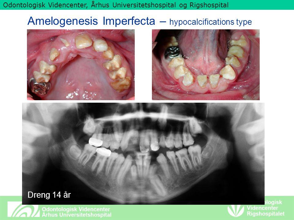 Odontologisk Videncenter, Århus Universitetshospital og Rigshospital Amelogenesis Imperfecta – hypocalcifications type Dreng 14 år
