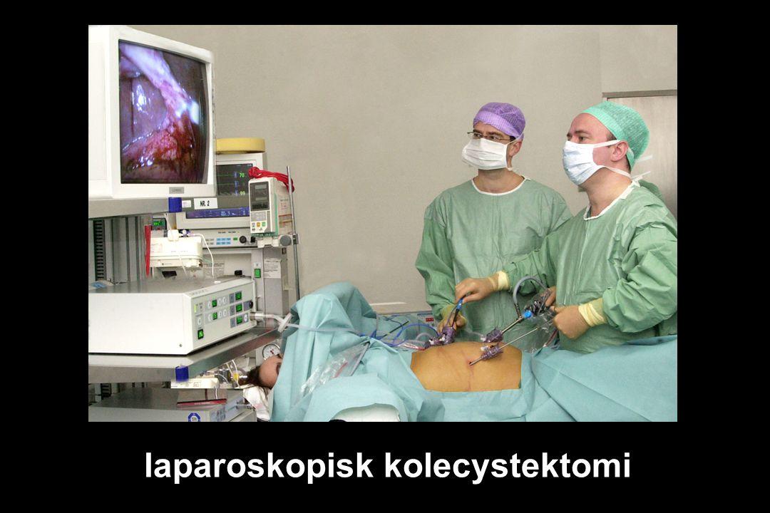 laparoskopisk kolecystektomi