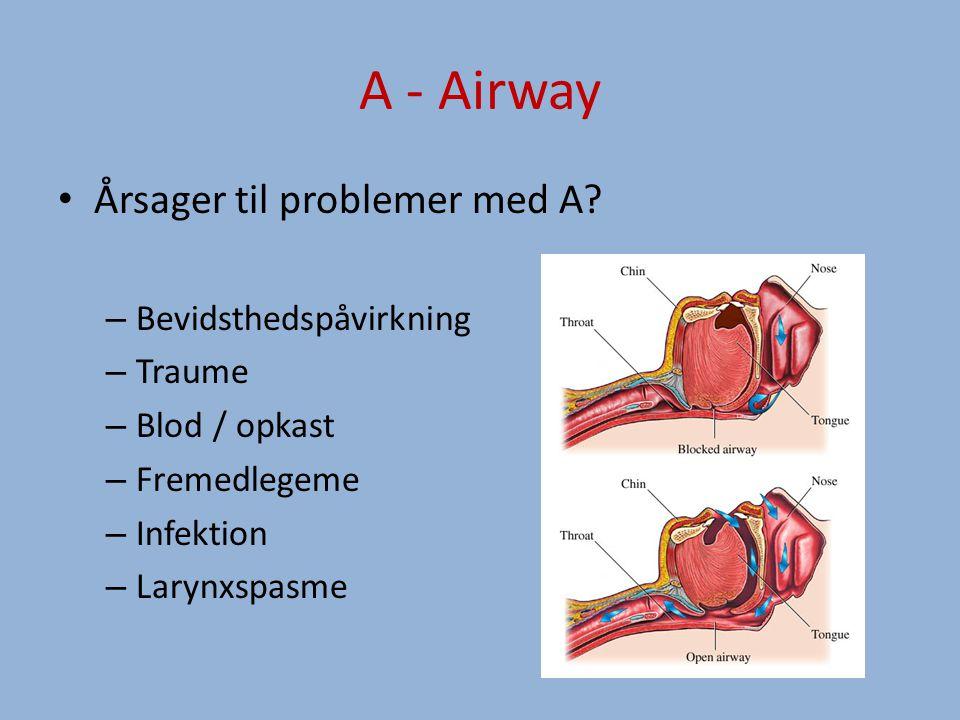 A - Airway Årsager til problemer med A.