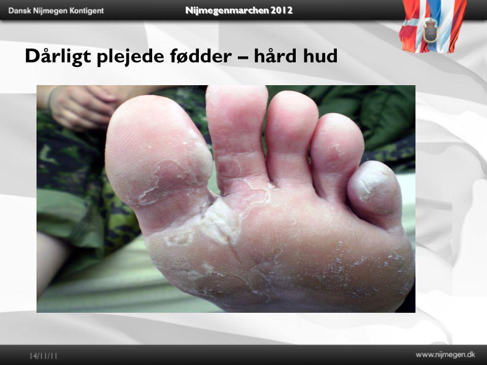 Nijmegenmarchen 2012 Dårligt plejede fødder – hård hud