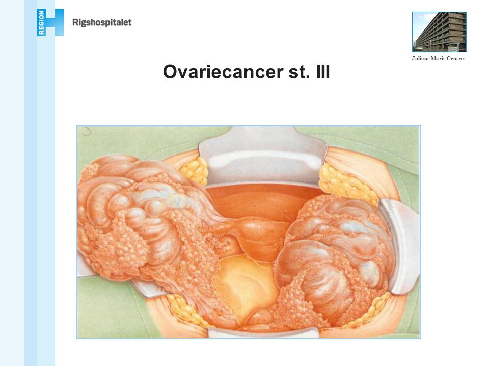 Ovariecancer st. III Juliane Marie Centret