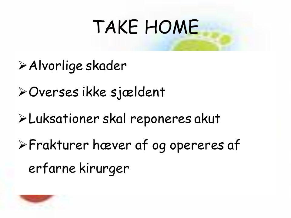 TAKE HOME  Alvorlige skader  Overses ikke sjældent  Luksationer skal reponeres akut  Frakturer hæver af og opereres af erfarne kirurger