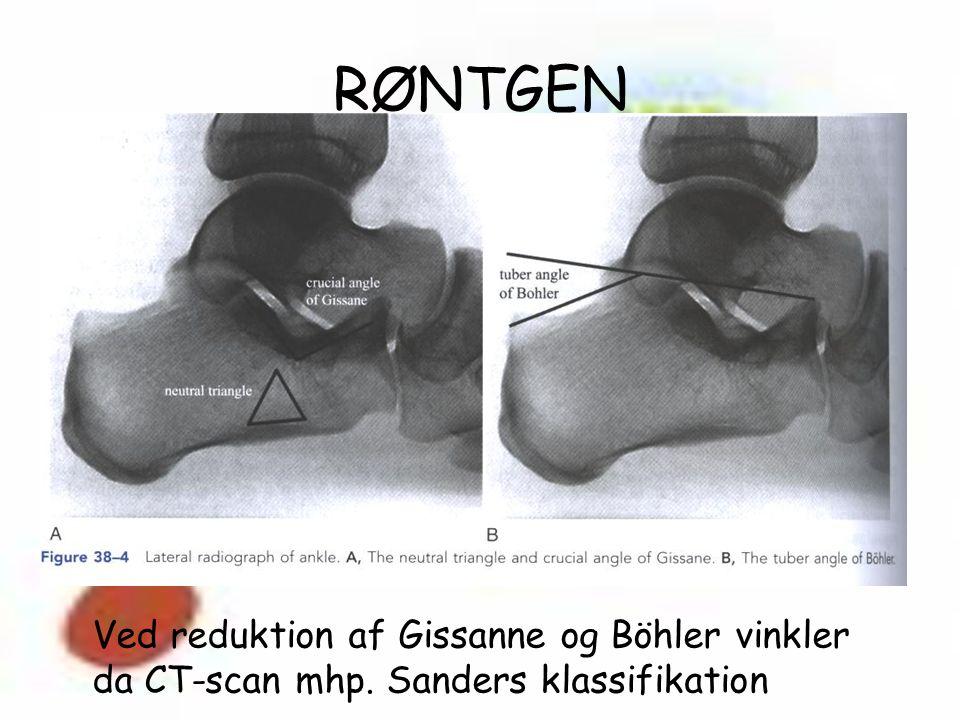 RØNTGEN Ved reduktion af Gissanne og Böhler vinkler da CT-scan mhp. Sanders klassifikation