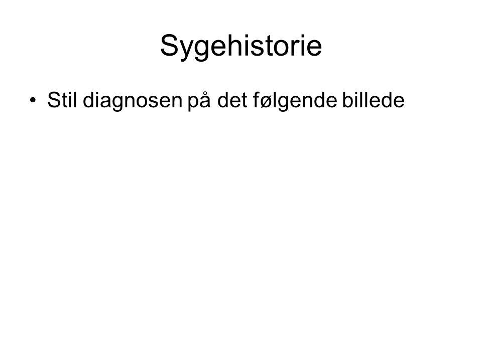 Sygehistorie Stil diagnosen på det følgende billede