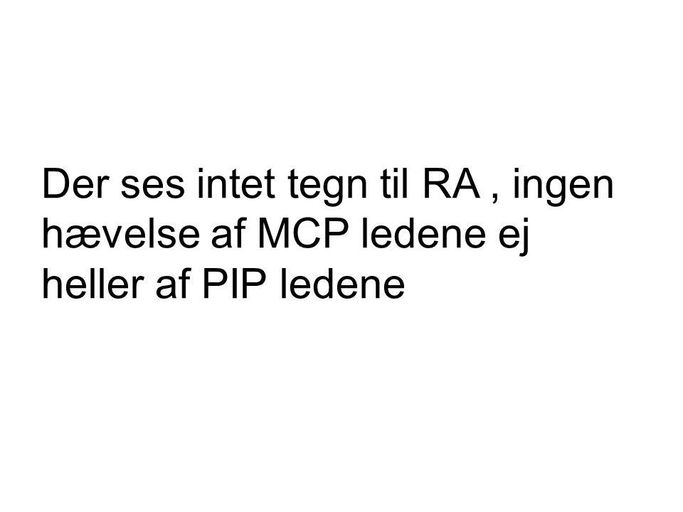 Der ses intet tegn til RA, ingen hævelse af MCP ledene ej heller af PIP ledene