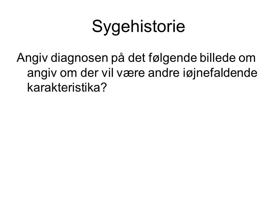 Sygehistorie Angiv diagnosen på det følgende billede om angiv om der vil være andre iøjnefaldende karakteristika?