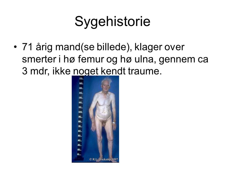 Sygehistorie 71 årig mand(se billede), klager over smerter i hø femur og hø ulna, gennem ca 3 mdr, ikke noget kendt traume.