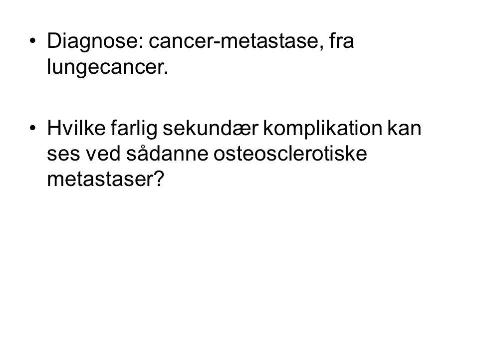 Diagnose: cancer-metastase, fra lungecancer.