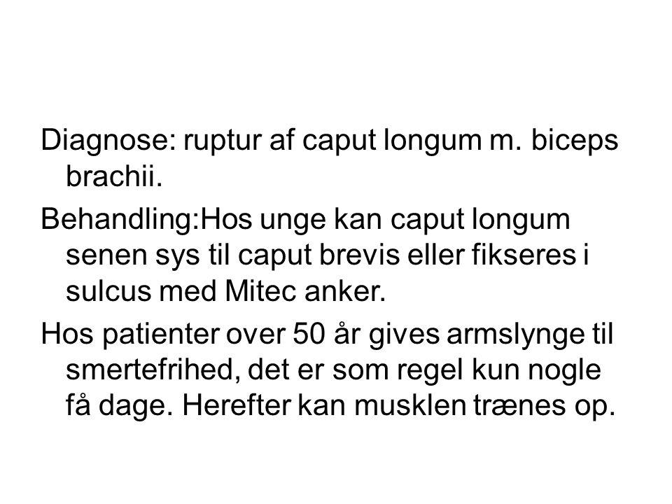Diagnose: ruptur af caput longum m.biceps brachii.
