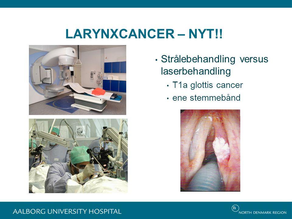 LARYNXCANCER – NYT!! Strålebehandling versus laserbehandling T1a glottis cancer ene stemmebånd