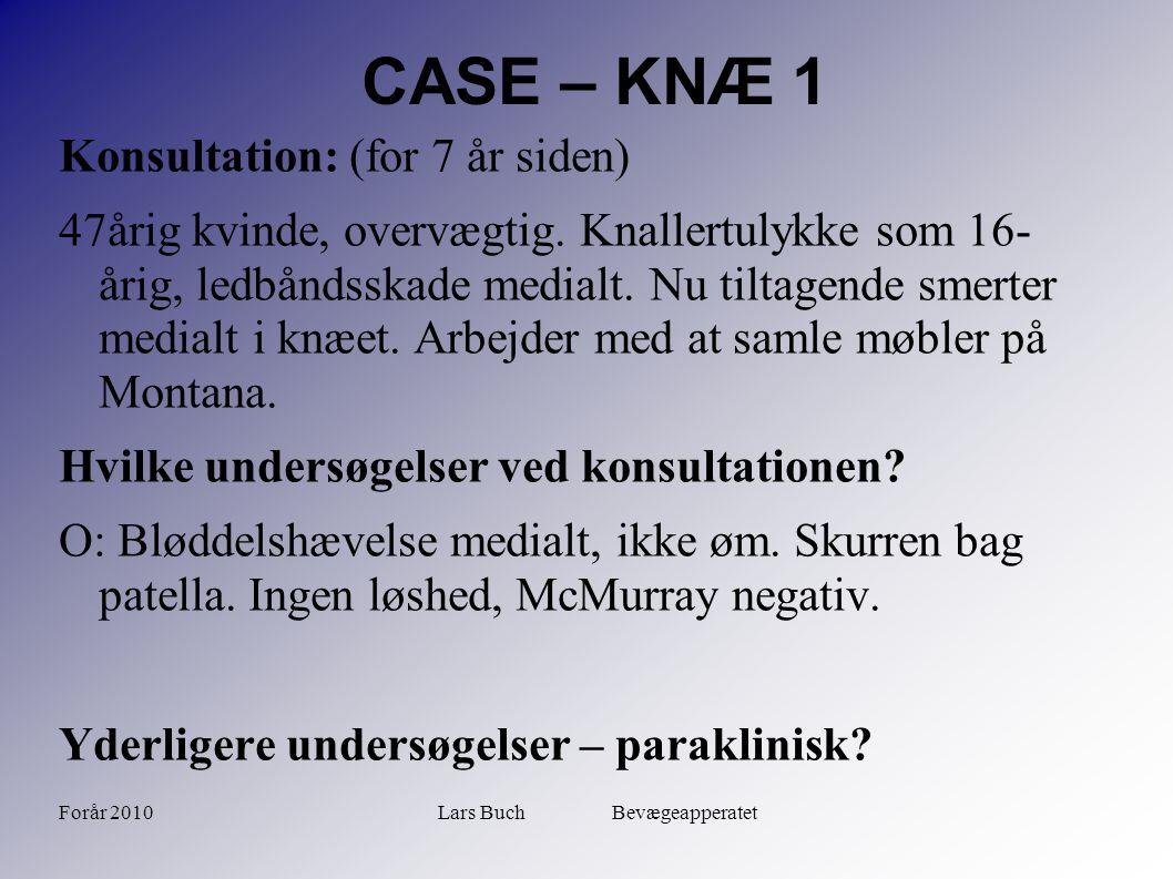 Forår 2010Lars Buch Bevægeapperatet CASE – KNÆ 1 Konsultation: (for 7 år siden) 47årig kvinde, overvægtig. Knallertulykke som 16- årig, ledbåndsskade
