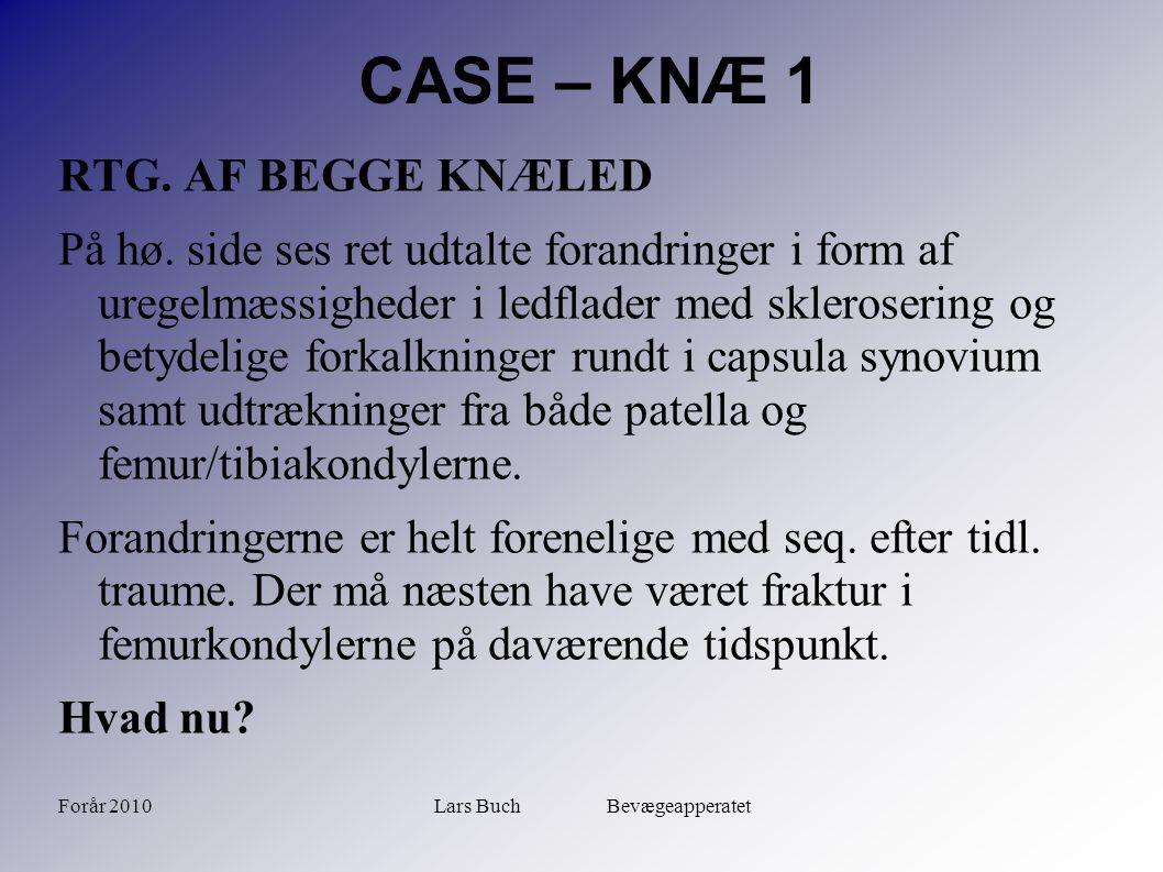 Forår 2010Lars Buch Bevægeapperatet CASE – KNÆ 1 RTG. AF BEGGE KNÆLED På hø. side ses ret udtalte forandringer i form af uregelmæssigheder i ledflader
