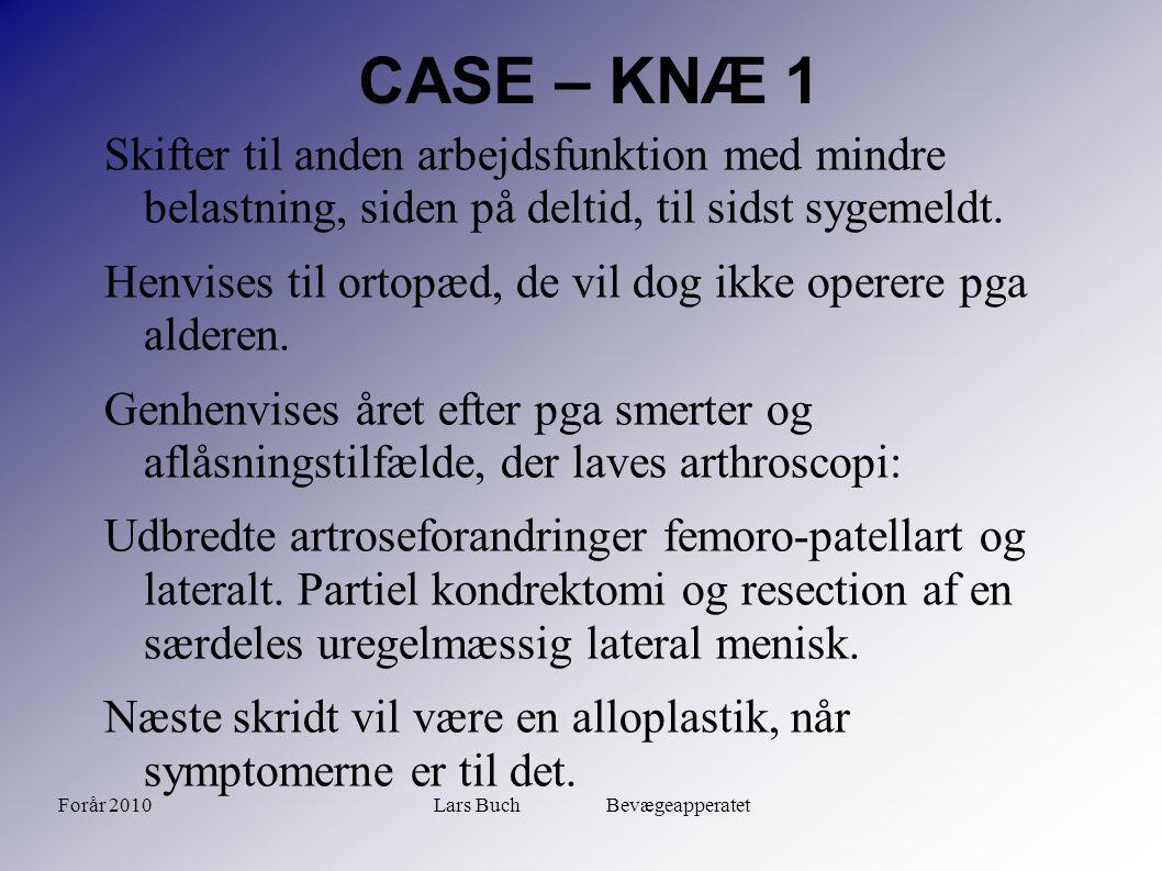 Forår 2010Lars Buch Bevægeapperatet CASE – KNÆ 1 Skifter til anden arbejdsfunktion med mindre belastning, siden på deltid, til sidst sygemeldt. Henvis